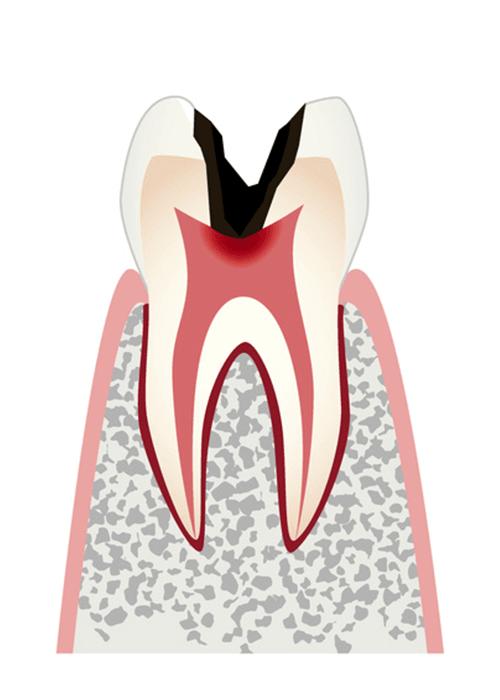 神経まで進行した虫歯