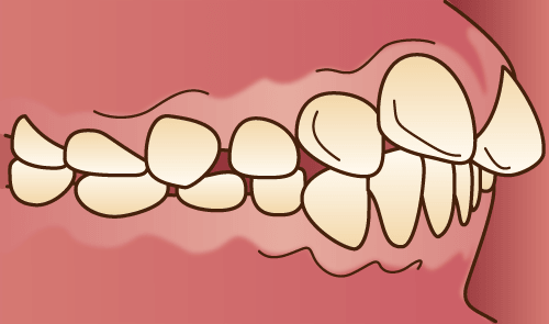 上顎前突、出っ歯